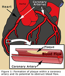 coronary-angioplasty-1.jpg